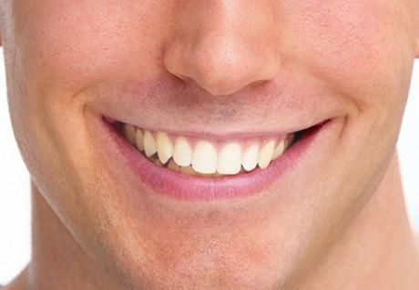 آموزش سفید کردن دندان در فتوشاپ